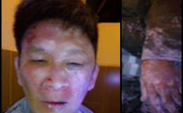 Ký giả Trương Minh Đức bị đánh hội đồng trọng thương