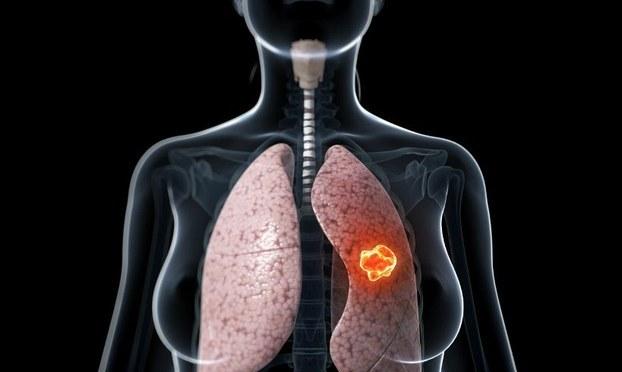 Có thể trị khỏi Ung thư phổi giai đoạn đầu